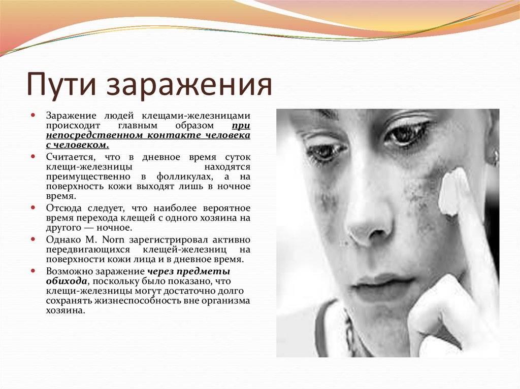 Лечение демодекоза на лице у человека препаратами и народными средствами