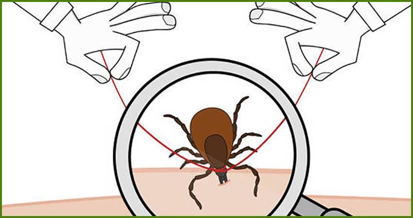 5 способов удалить клеща с тела человека - меры предосторожности, обработка ранки и необходимость анализа