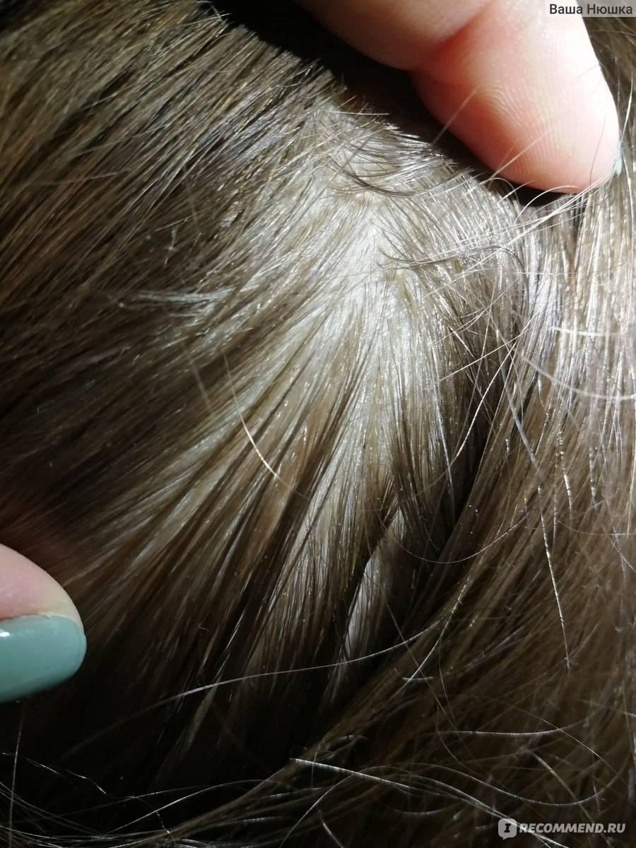 Живут ли вши на окрашенных волосах и погибают ли от краски