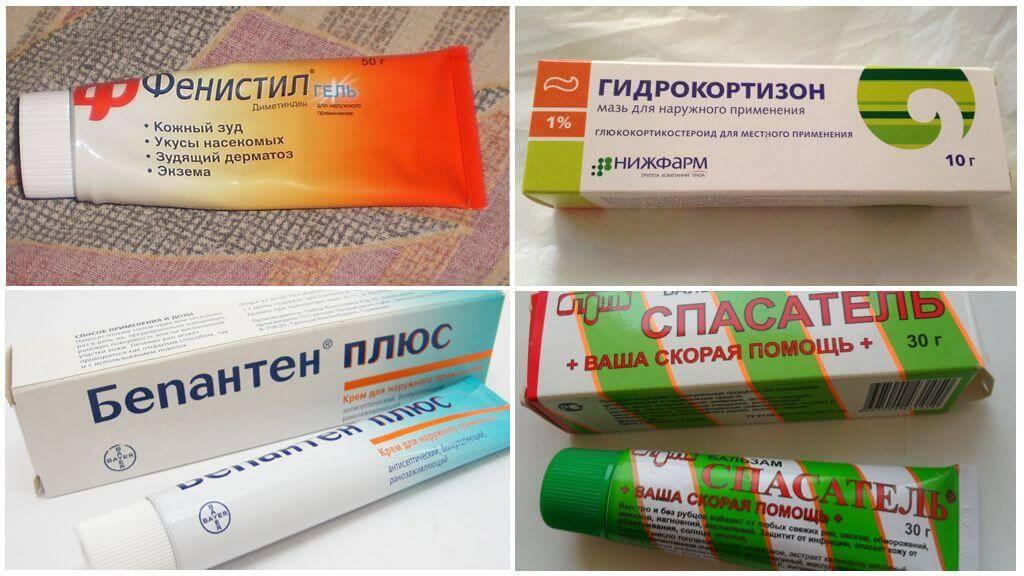 Укус комара, как снять зуд и болевые ощущения у ребенка