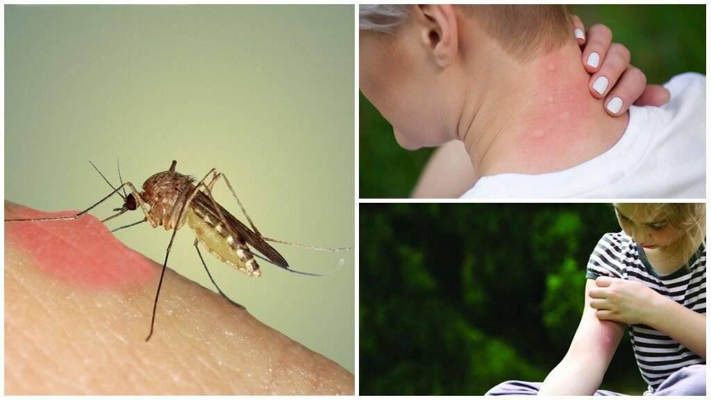 Малярийный комар — опасный враг человека