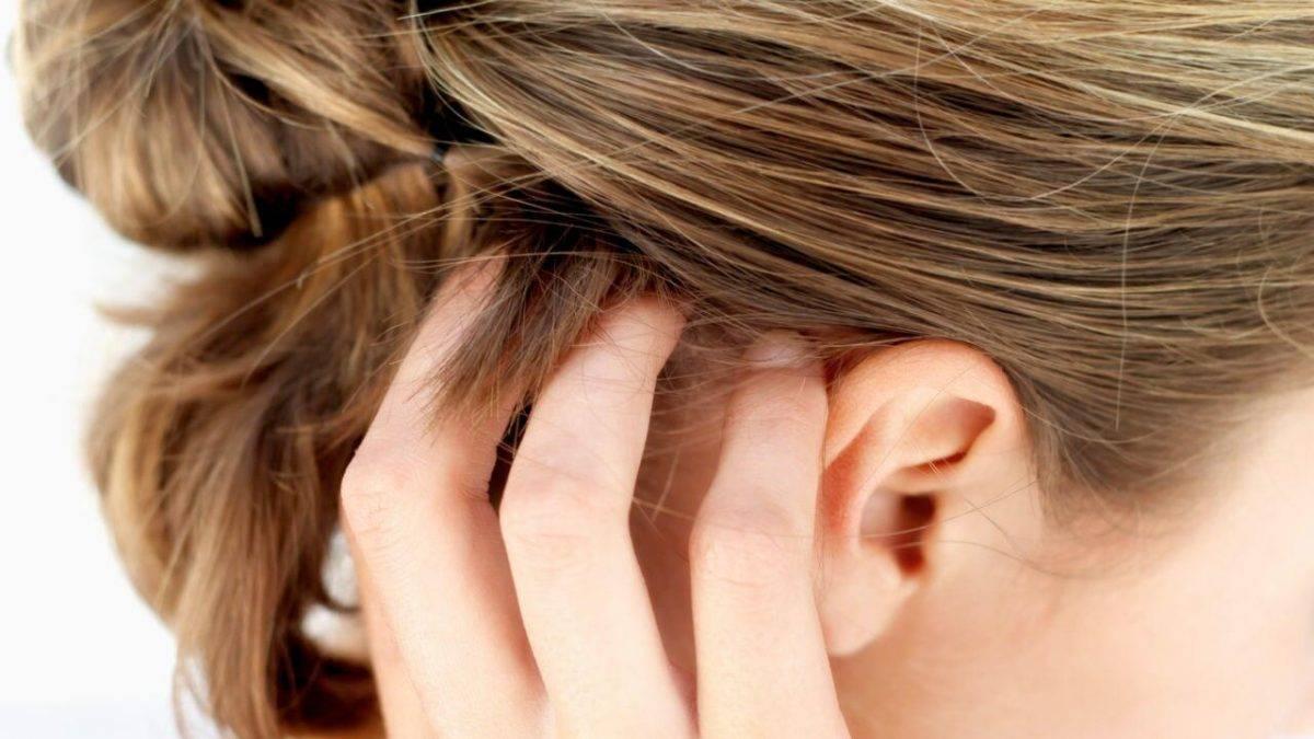 Почему чешется голова, она чистая и без вшей - причины и лечения