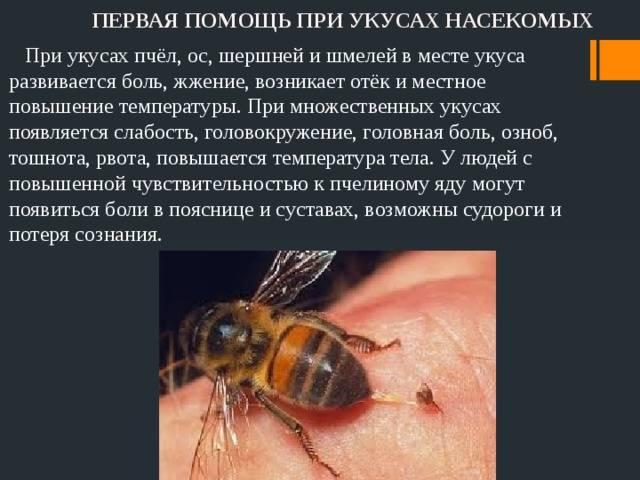 Чем опасен укус осы?