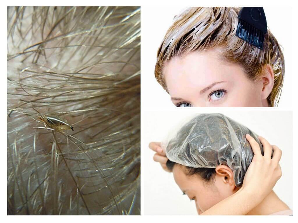 Живут ли вши на окрашенных волосах, краска для волос убивает их