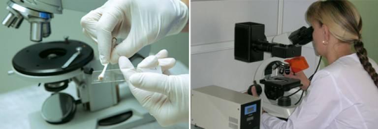 Анализ на демодекоз: как сдавать соскоб на лице