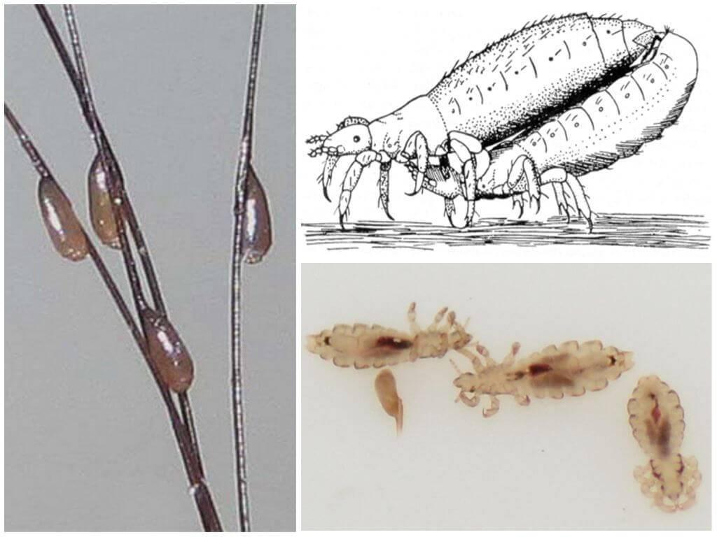 Как выглядят вши: знакомимся с особенностями внешнего вида и биологии паразитов