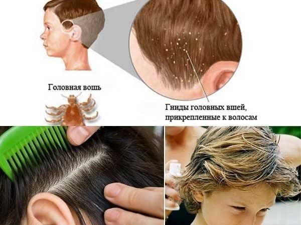 Первые признаки вшей (педикулеза) на голове: как передаются и размножаются