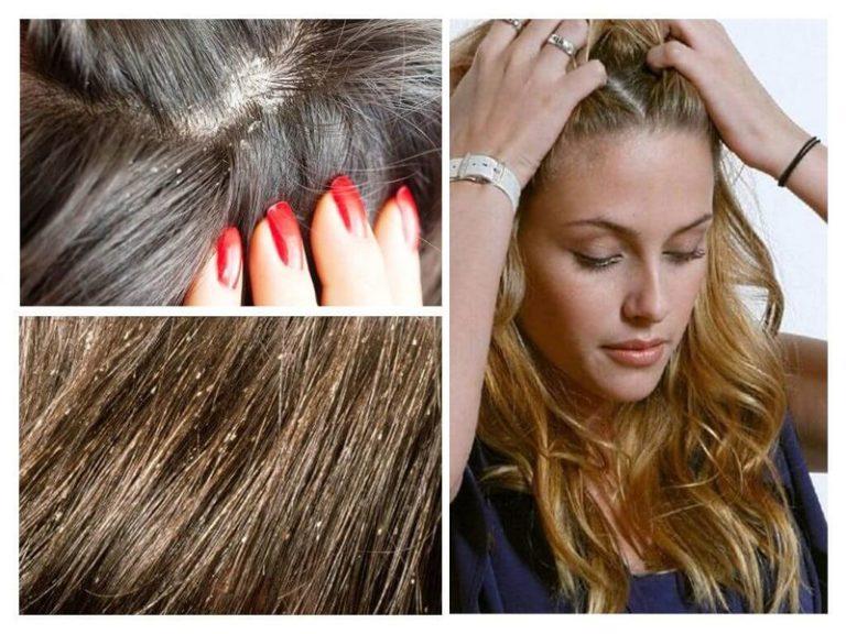 Как отличить перхоть от гнид на волосах: подробная инструкция