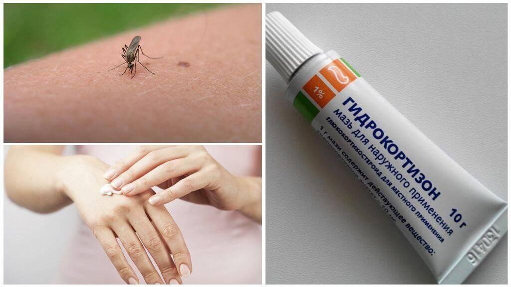 Как снять зуд от укусов комаров в домашних условиях