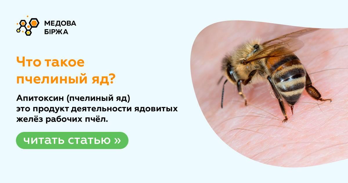 Первая помощь при укусе пчелы (народные средства): чем лечить в домашних условиях