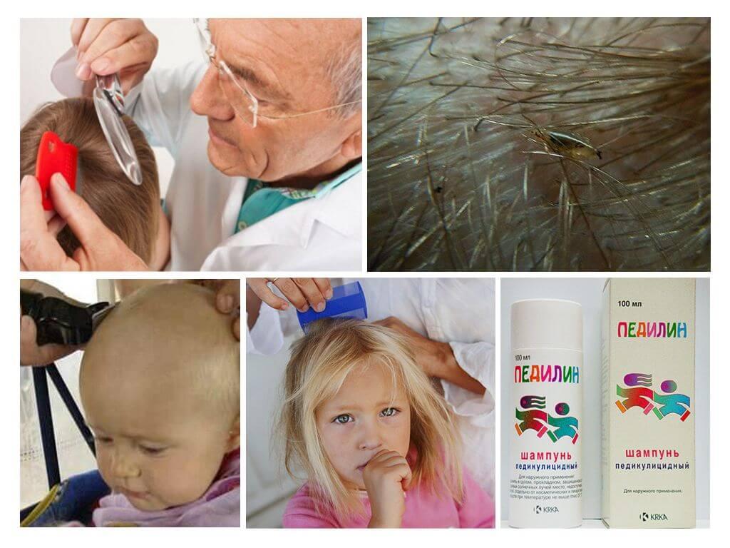 Головной педикулёз - симптомы болезни, профилактика и лечение головного педикулёза, причины заболевания и его диагностика на eurolab