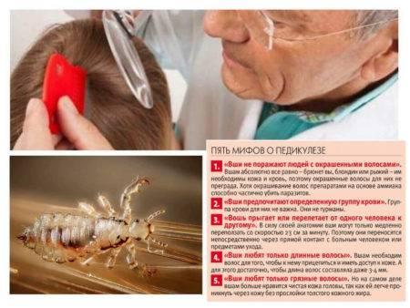 Дегтярное мыло от вшей | помогает или нет | лечение педикулеза дегтярное мыло от вшей | помогает или нет | лечение педикулеза