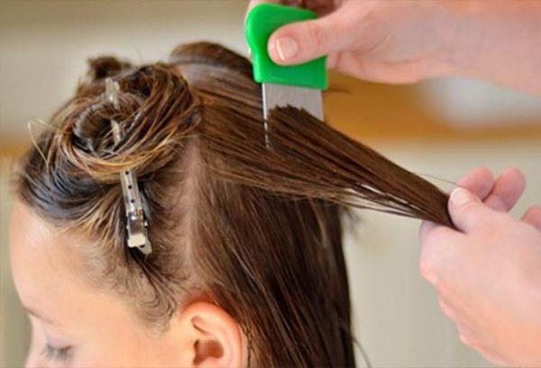Как вычесать гнид с длинных и коротких волос в домашних условиях