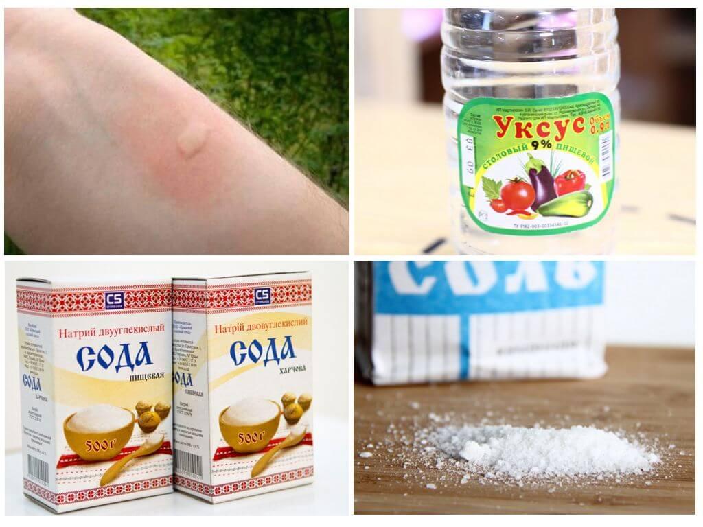 Содовый раствор от укусов комаров для детей и взрослых