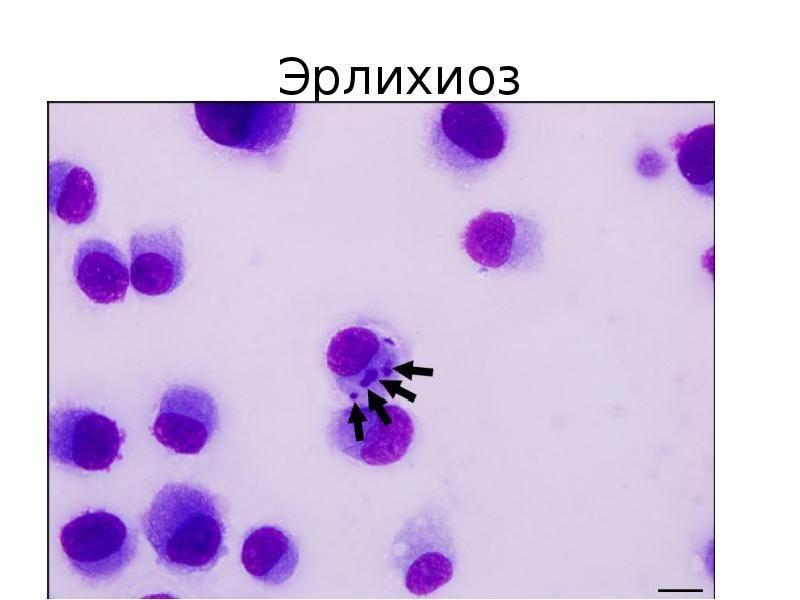 Эрлихиоз – бактериальная инфекция у собак