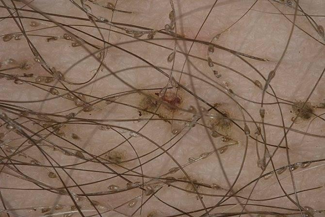 Могут ли вши появиться на нервной почве и от стрессов | все о паразитах