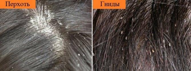 Как отличить перхоть от гнид: сходства и различия (с фото)