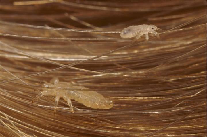 Мандавошь – фото, симптомы и лечение