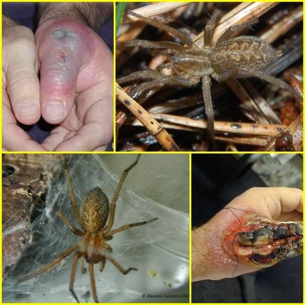 Укусы насекомых, паукообразных и рептилий - что делать?