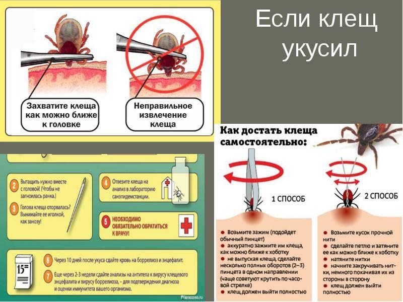 Клещ на теле: как извлечь насекомого?