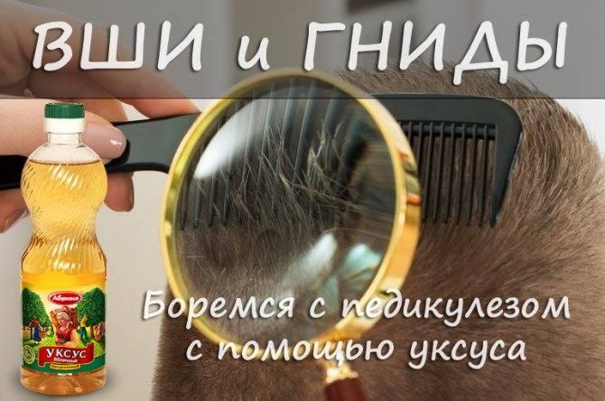 Как развести уксус от вшей и гнид: несколько рецептов для лечения и ополаскивания волос от паразитов