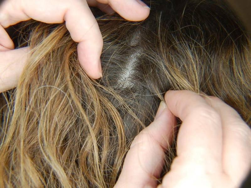Почему чешется голова если она чистая и без вшей