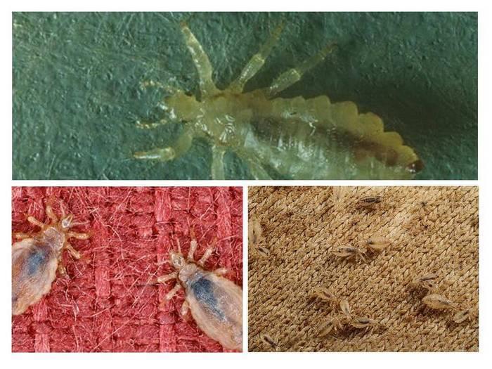 Бельевые вши: как выглядят и как от них избавиться в домашних условиях, средство от бельевых вшей, фото укусов