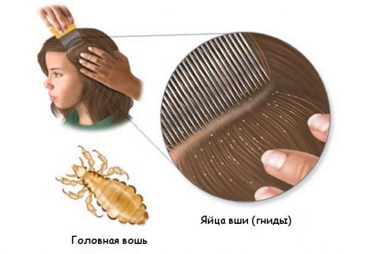 Можно ли избавиться от педикулеза, покрасив волосы: мифы и реальность