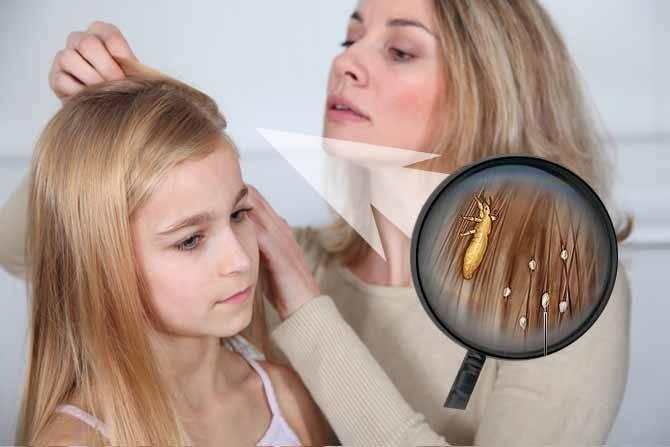 Педикулез у детей: лечение и профилактика. профилактика от вшей