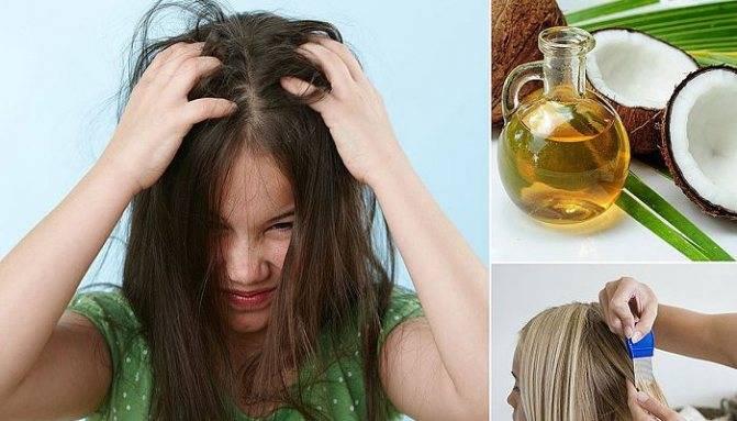 Как применять анисовое масло от вшей, инструкция и отзывы