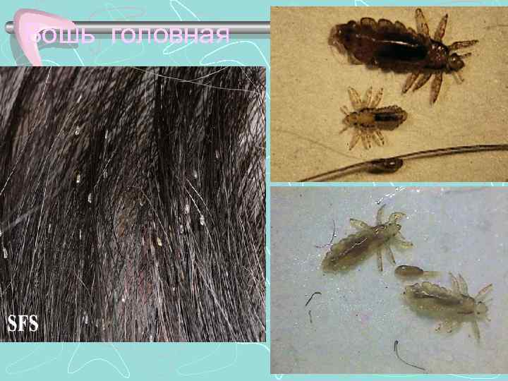 Бывают ли вши и гниды на нервной почве: симптомы и настоящие причины появления паразитов