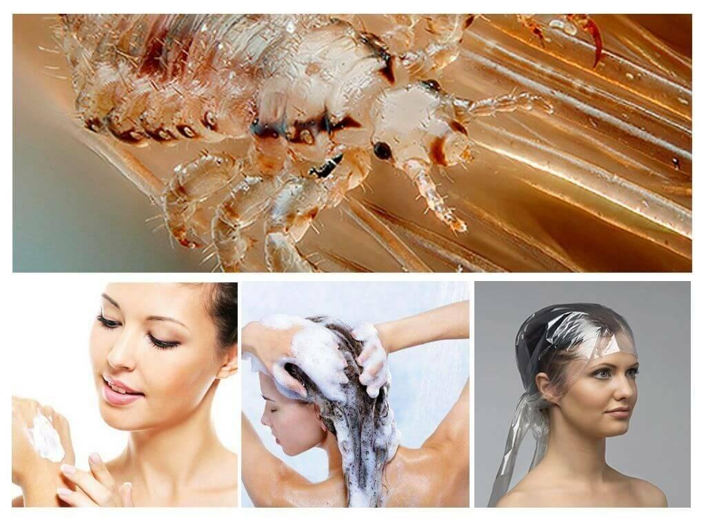 Дегтярное мыло от вшей и против гнид: помогает ли, способ применения, можно ли, как вывести и мыть голову, а также другие особенности применения при педикулезе