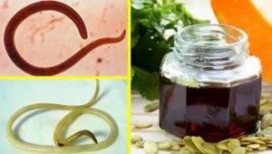 Как вывести паразитов из организма человека медикаментозно и с помощью средств народной медицины?