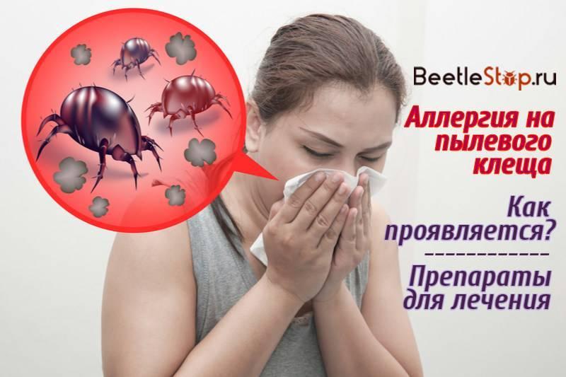 Аллергия на бытовую пыль и пылевых клещей у детей: симптомы и лечение