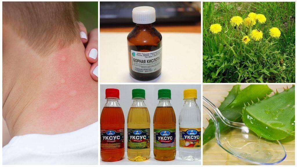 Народные средства от комаров: чем отпугнуть, чем снять зуд от укуса