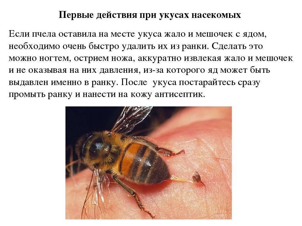 Укусила пчела - что делать в домашних условиях