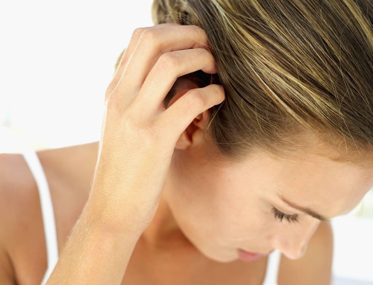 Почему чешется голова: причины