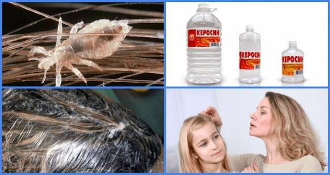 Как вывести вшей в домашних условиях перекисью водорода