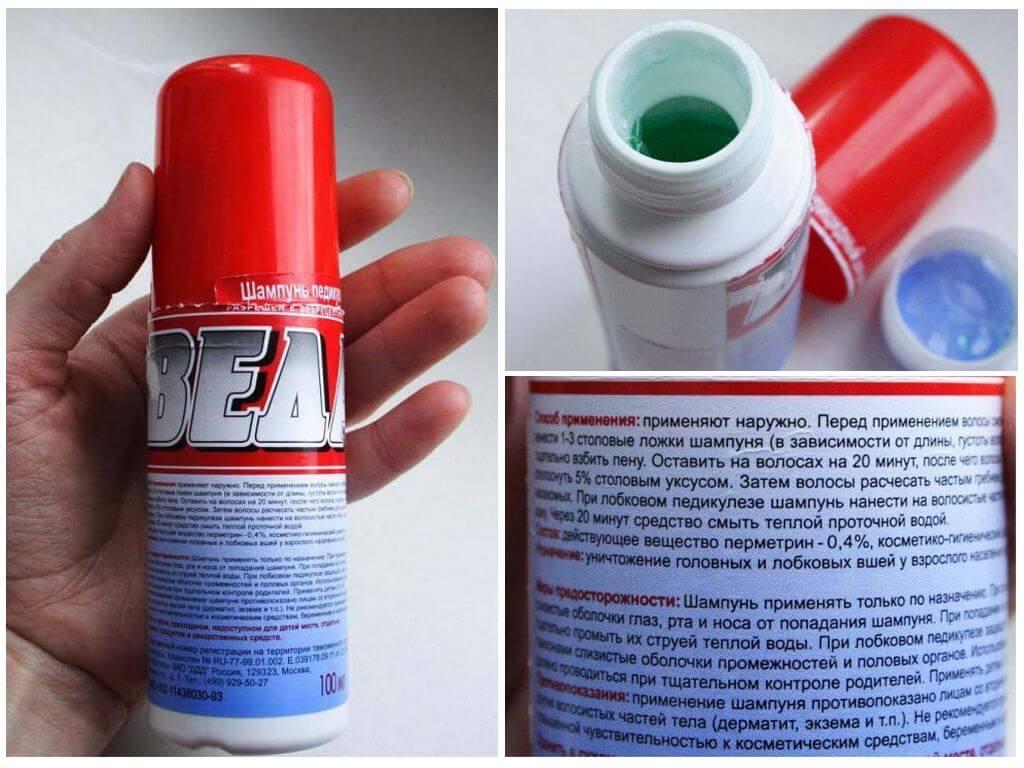 ❿ топ 10 лучших вариантов дегтярного шампуня от вшей и гнид: помогает ли от проблемы, как пользоваться, цена, отзывы