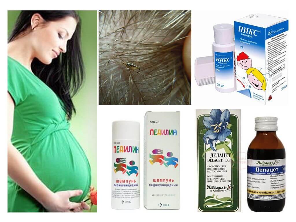 Вши при беременности: что делать, чем лечить, безопасные средства
