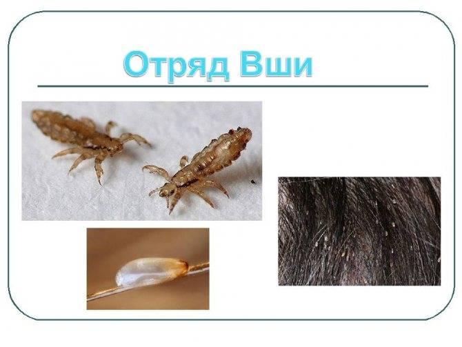 Бельевые вши: уничтожение насекомых от сэс