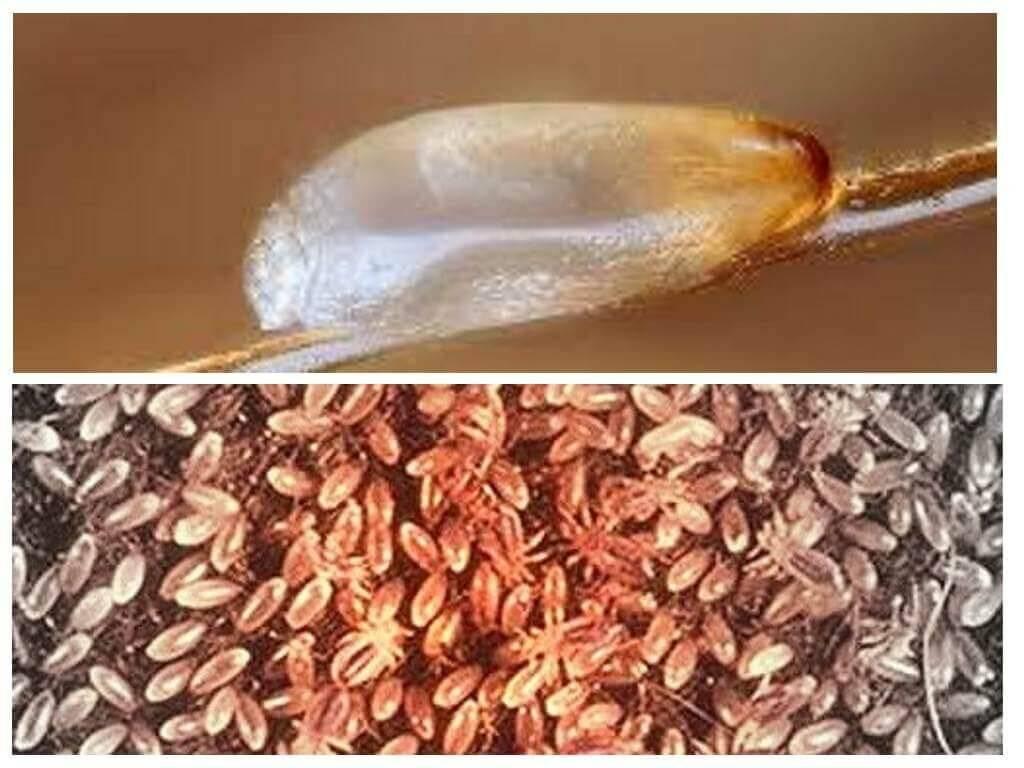 Сколько времени длится инкубационный период вшей и как они передаются человеку?