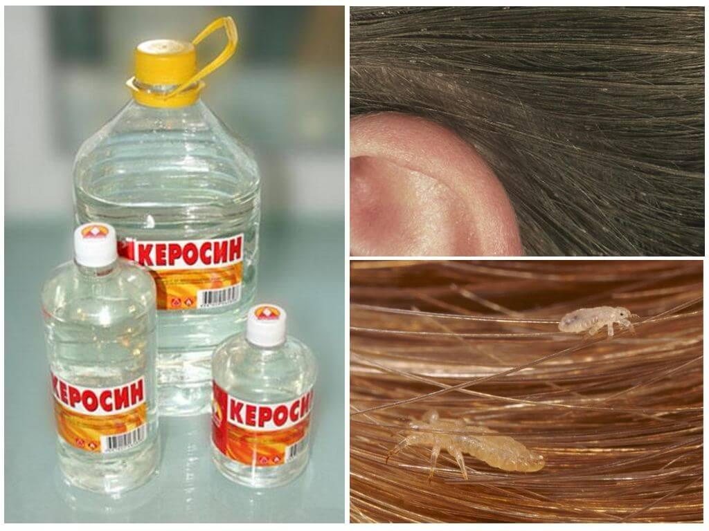 Как использовать перекись водорода, чтобы избавиться от вшей и гнид?