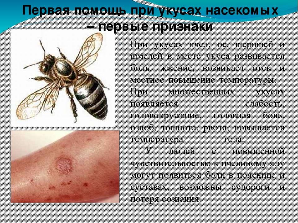 Чем лечить укус осы в домашних условиях