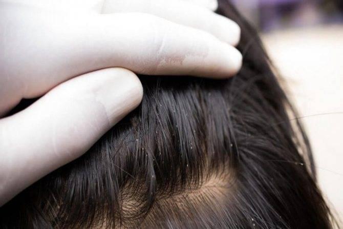 Рекомендации по выведению вшей и гнид с головы перекисью водорода